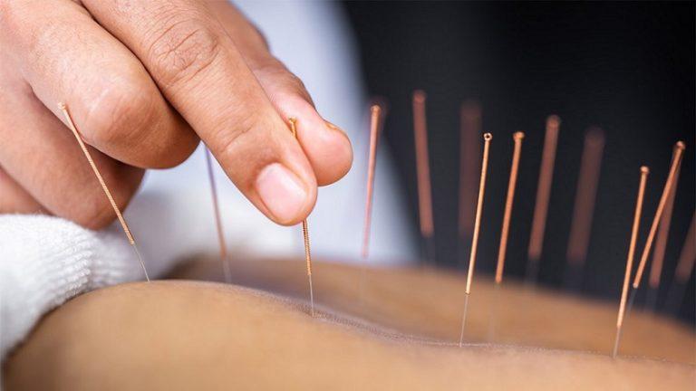 針灸——火扎針法